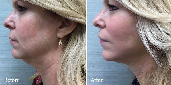 Submental lipsuction on female patient by Dr. Azzi in Jupiter Florida