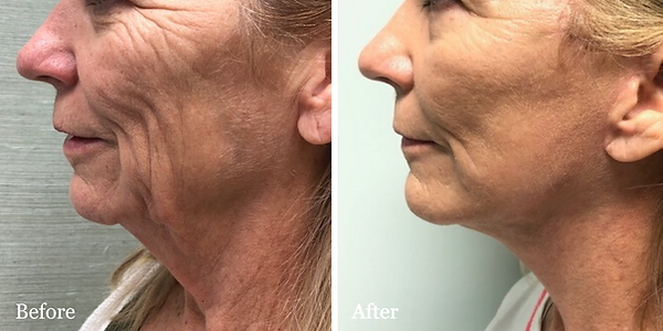 Palm Beach Facelift and Neck Lift by Dr.