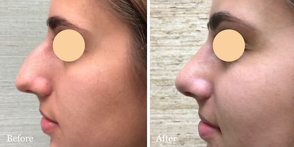 Nose job by Dr. Azzi in Jupiter Florida.