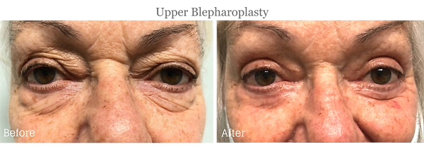 Before and After upper Blepharoplasty (Eyelid Lift) on female patient by Dr. Jean-Paul Azzi in Jupiter Florida