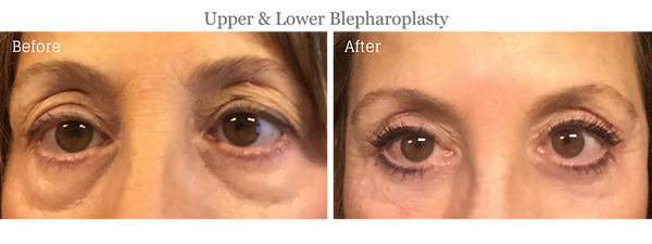 Before and After Lower and Upper Blepharoplasty (Eyelid Lift) on female patient by Dr. Jean-Paul Azzi in Jupiter Florida