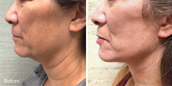 Facelift & Neck lift by Dr. Azzi in Jupi