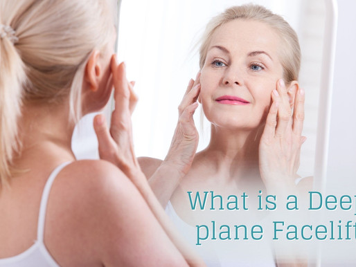 What is a Deep-Plane Facelift?