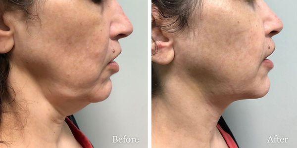 submental liposuction on female patient by Dr Azzi in Jupiter