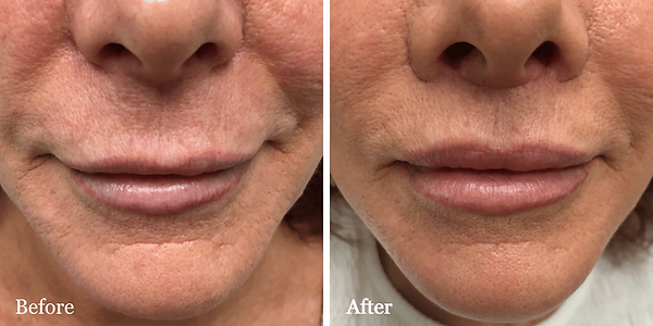 Upper Lip Lift on female patient by Dr.