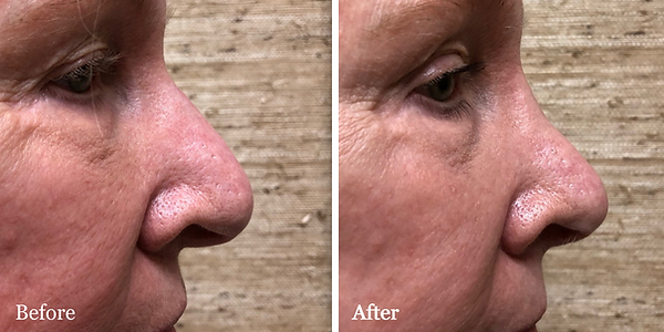 Revision Rhinoplasty on female patient -