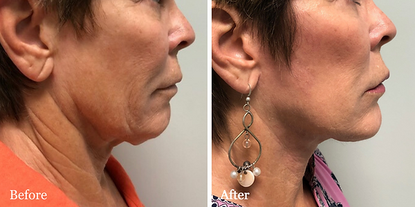 facelift and neck lift by Doctor Azzi in