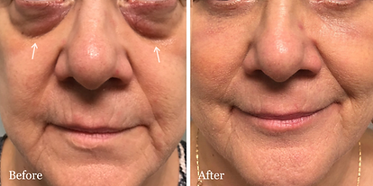 Blepharoplasty-eyelid-lift-jupiter-palm-