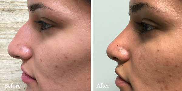 Female rhinoplasty (nose job) before and after in Stuart by Dr. Azzi