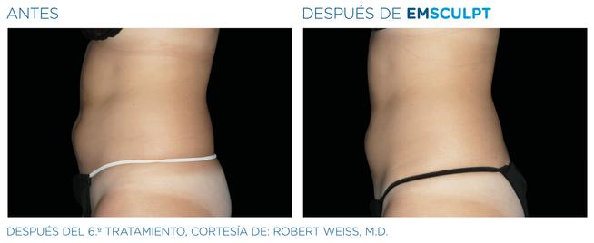 EMSculpt Resultado abdomen perfil