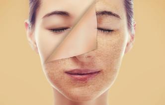 dermandtek_peeling-facial.jpg