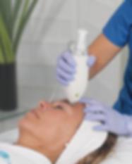 tratamientos secuelas-16.png