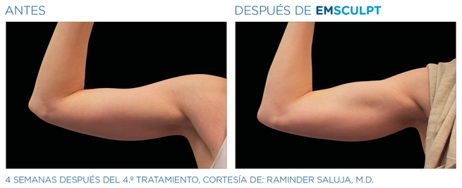 EMSculpt Resultado brazos mujer
