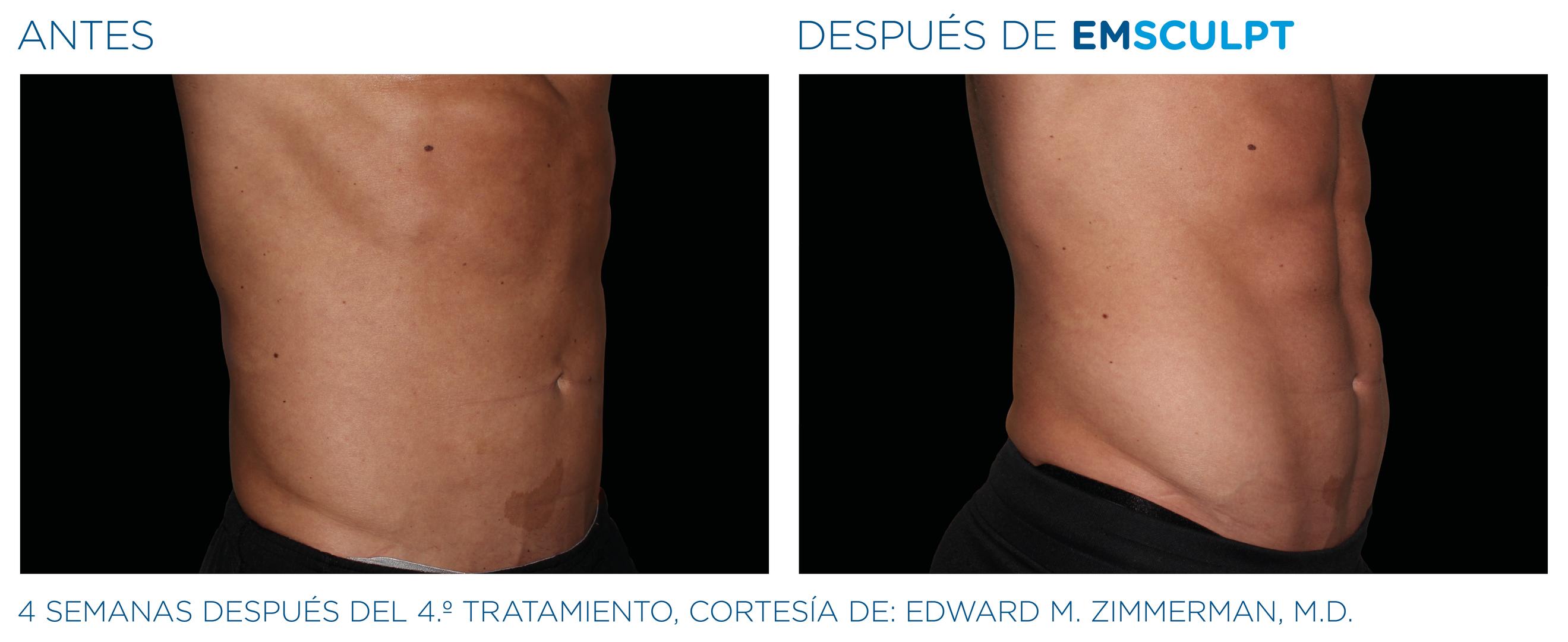 EMSculpt Resultado abdomen hombre