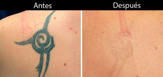 laser-q-switch-eliminacion-de-tatuajes-a