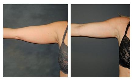 Mesoterapia-para-brazos-y-piernas.jpg