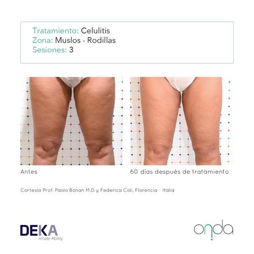celulitis en muslos y rodillas