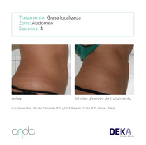 grasa en abdomen