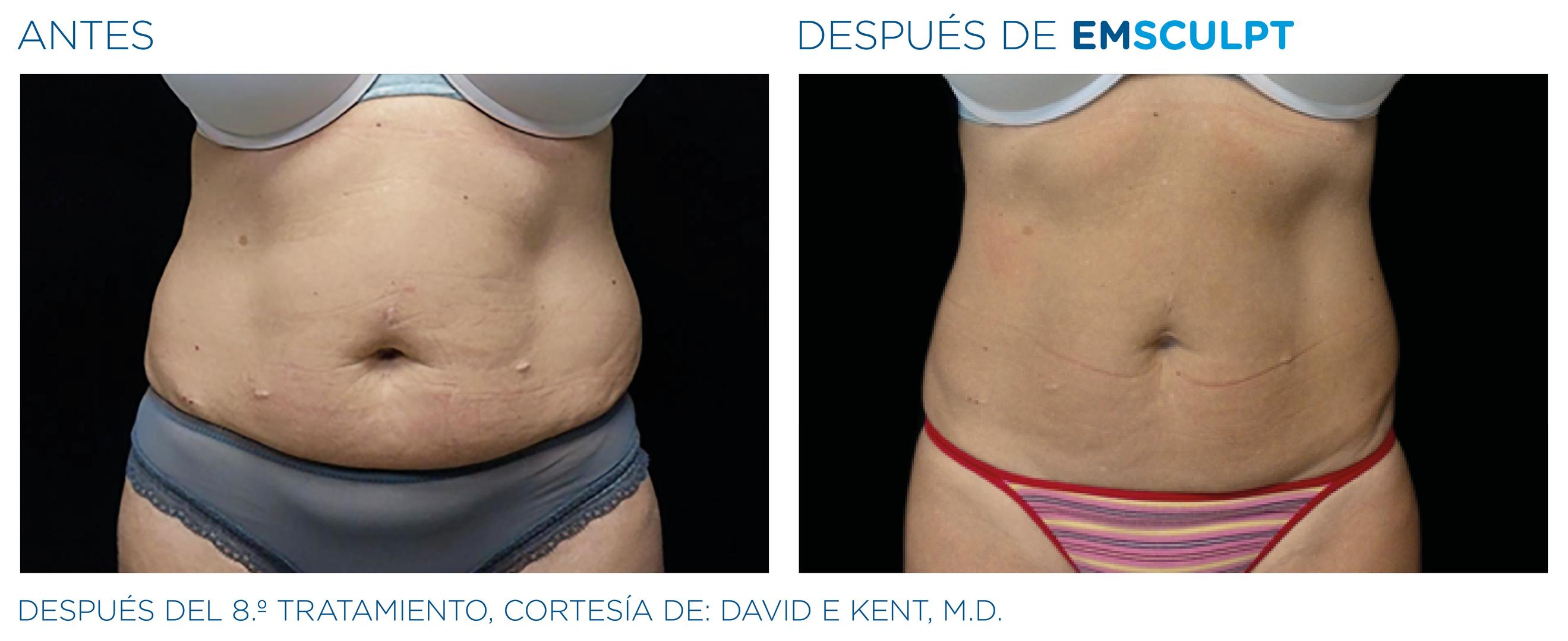 EMSculpt Resultado abdomen mujer 2