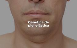 Genética de piel elástica
