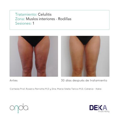 celulitis en muslos inferiores y rodillas