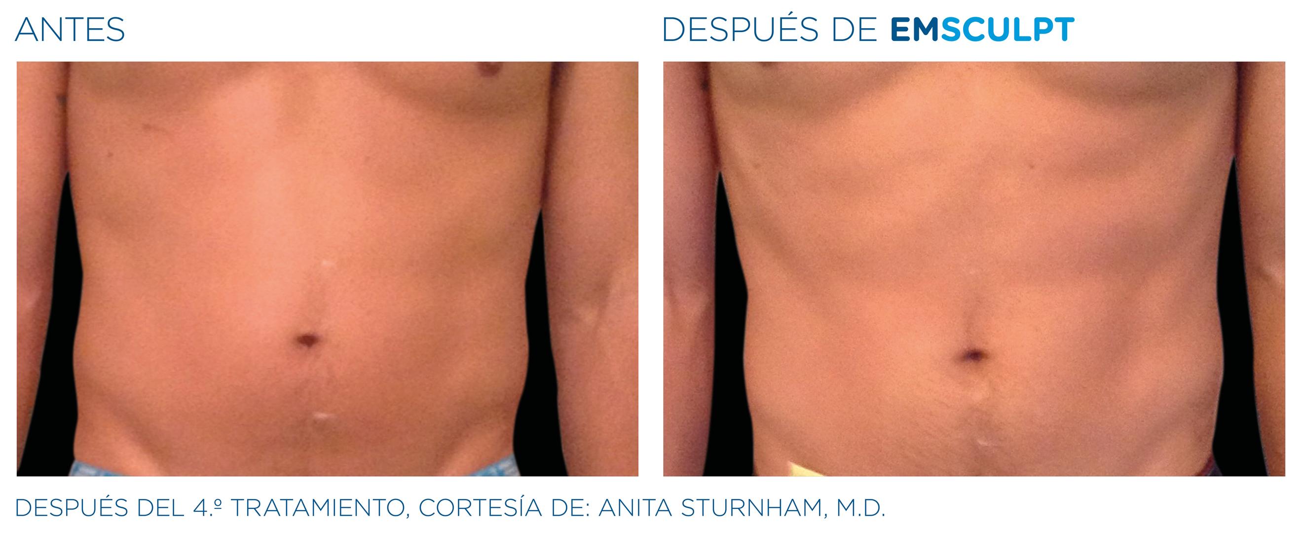 EMSculpt Resultado abdomen hombre 2