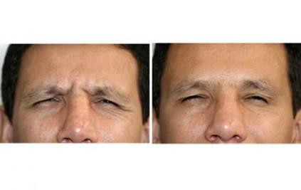 4-botox-antes-despues.jpg