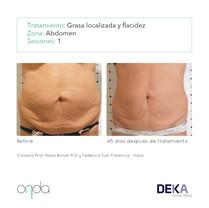 grasa y flacidez en abdomen