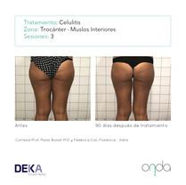 celulitis en trocantes y muslos inferiores