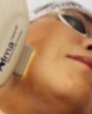 laser harmony para acne
