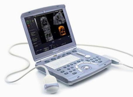 Mobile Ultrasound! See your baby at home!