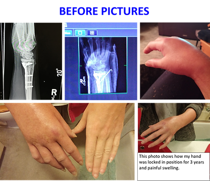 Rachelle Wallace's Wrist Before.png