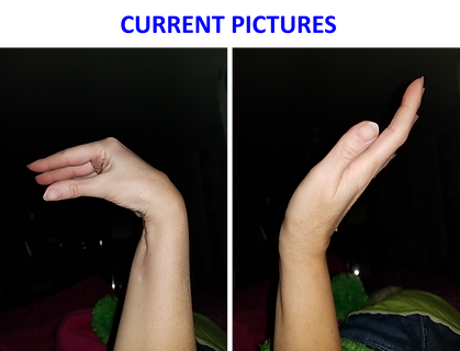 Rachelle Wallace's Wrist After.png