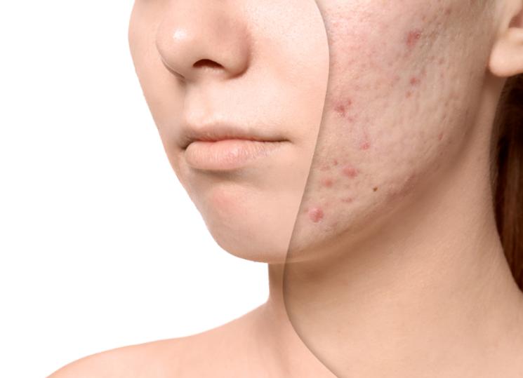 acne, website.png