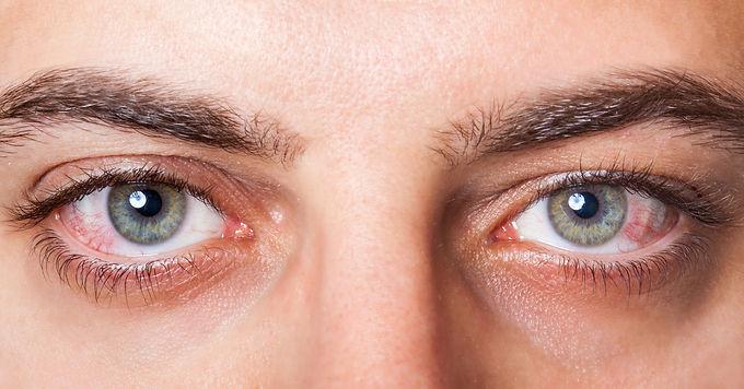 齊來認識乾眼症