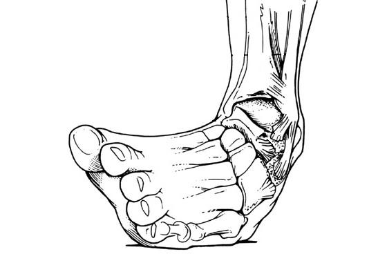 踝關節扭傷|中醫