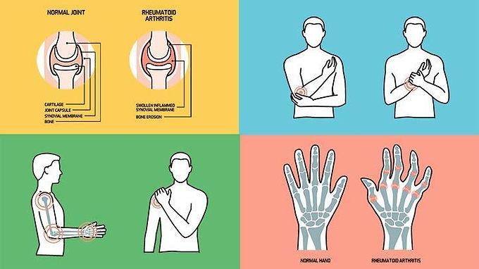 中醫論治類風濕關節炎