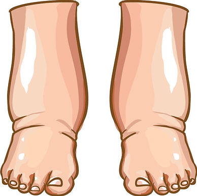 不明原因的下肢水腫之中醫治療