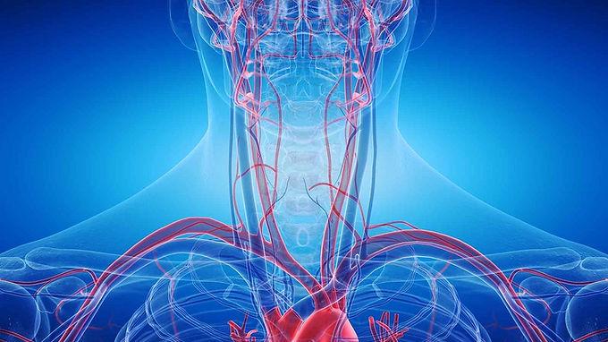 椎基底動脈供血不足