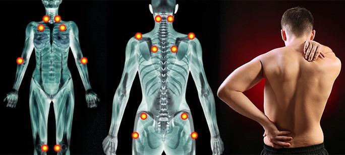 纖維肌痛綜合征|中醫