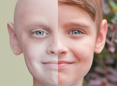 認識癌症|中醫