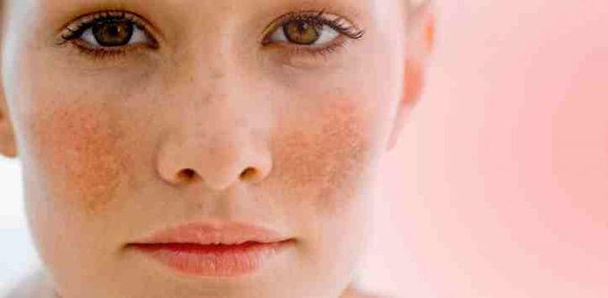 黃褐斑的病因及發病機理認識