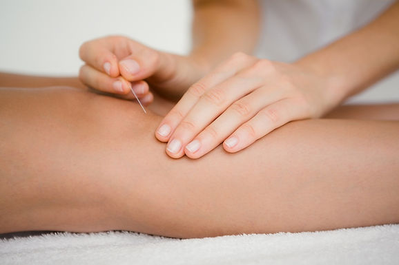 髂脛束摩擦症候群與針灸、推拿治療