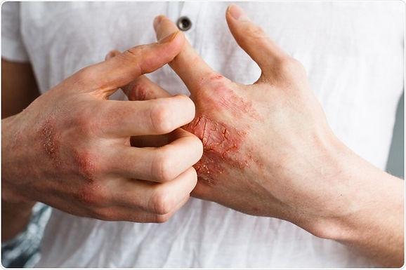 麻黃連翹赤小豆湯在皮膚病上的應用分享