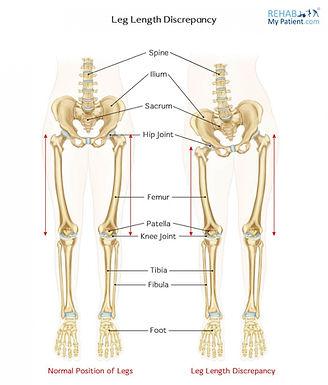 腰痛/膝痛都可能是長短腳