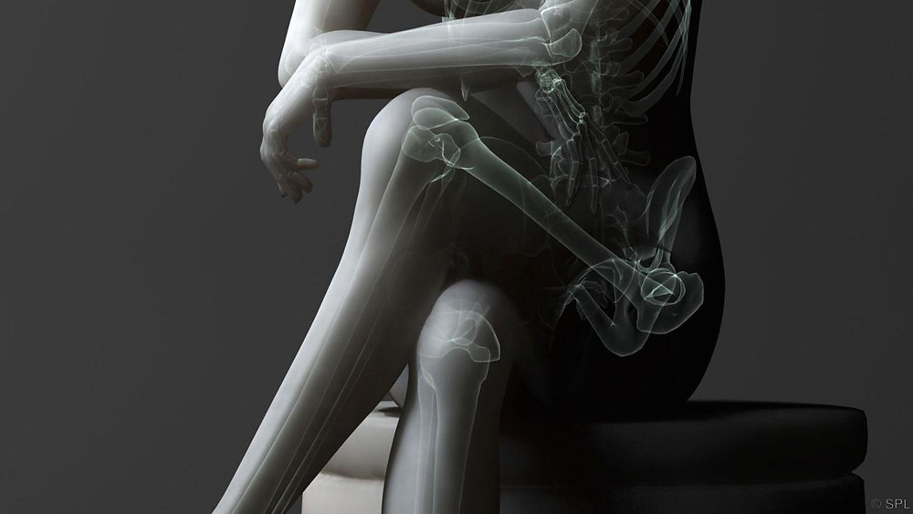 梨狀肌症候群|中醫