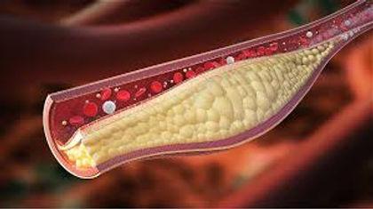 血栓閉塞性脈管炎