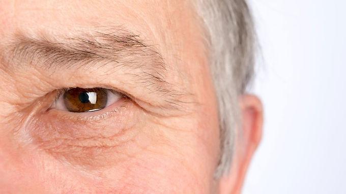 老年黃斑退化