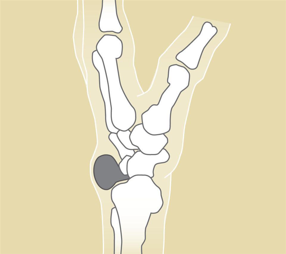 腱鞘囊腫|中醫