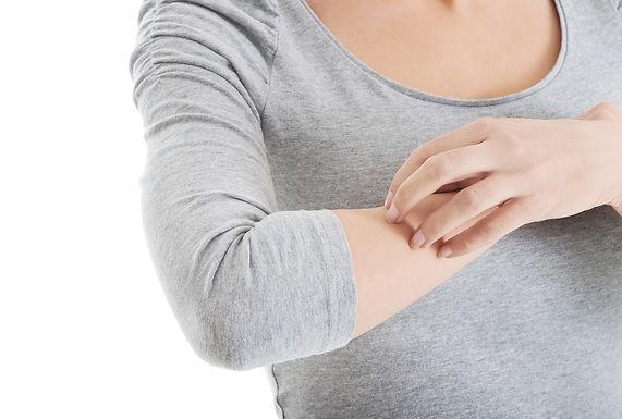 結節性癢疹